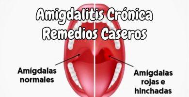 Remedios caseros para la amigdalitis crónica