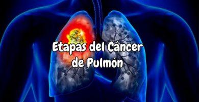 Cuántas etapas tiene el cáncer de pulmón