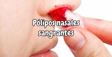 Pólipos nasales sangrantes malignos, consecuencias y tratamiento natural