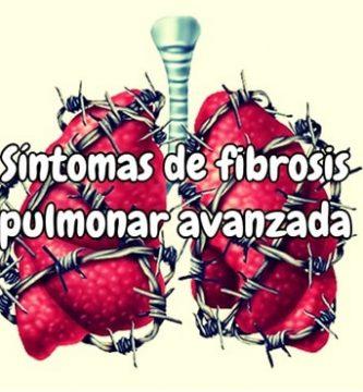 Síntomas de fibrosis pulmonar avanzada