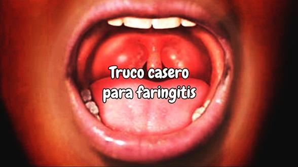 truco casero para faringitis